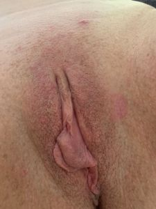 Wiltscouple's Pussy image